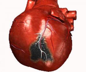 infarto2